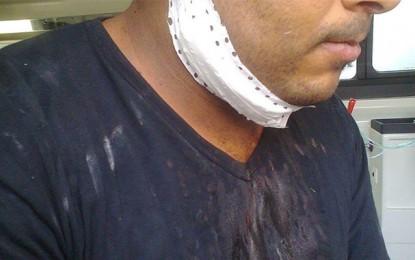 Mornaguia: Un geôlier grièvement blessé par un prisonnier
