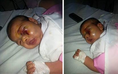 Bébé défiguré à Gafsa : Violence parentale ou accident domestique?