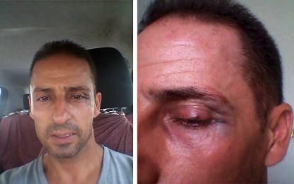 Sfax : Agression de Zied, initiateur de la campagne «Sayeb trottoir»