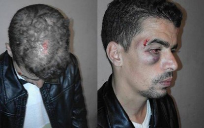 Agression d'un journaliste de Kasserine FM