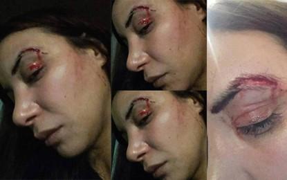 ''Much Loved'' : L'actrice principale Loubna Abidar agressée au Maroc (vidéo)