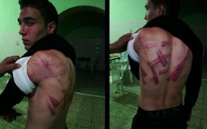 Le fils d'un policier passé à tabac par des salafistes