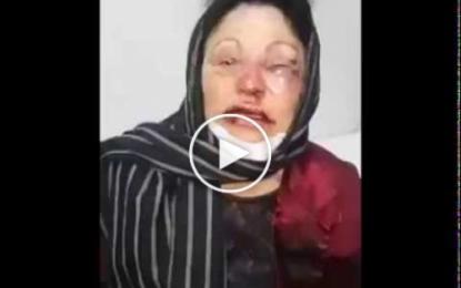 Une dame agressée à son domicile: Le coupable arrêté