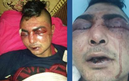 Agressé par des policiers à Sfax, un homme frôle la mort
