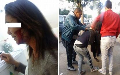 Sfax : Une lycéenne balafre sa camarade !