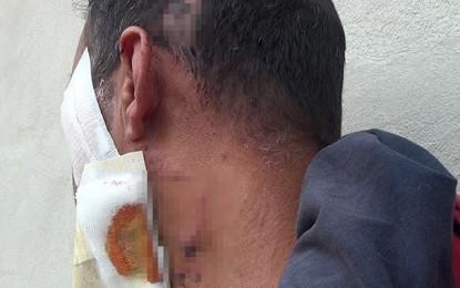 Ben Guerdane : Un policier balafre un homme et invoque la légitime défense