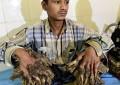 «L'homme arbre» du Bangladesh bientôt opéré