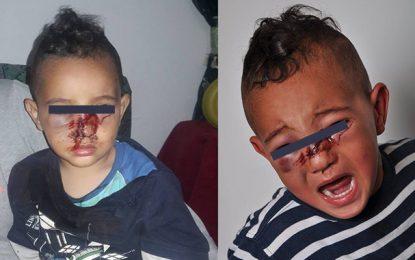 Manouba : La police dément avoir blessé un enfant
