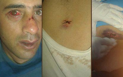 Kasserine : Un agent de police poignardé à Bouchebka