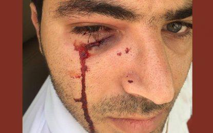 Sousse : Il cogne son moniteur d'auto-école après avoir raté son permis