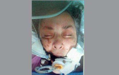 Appel à témoins : Une femme retrouvée inconsciente à Metline
