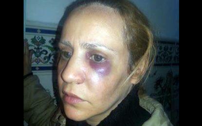 Arrestation du policier accusé d'agression sur une femme