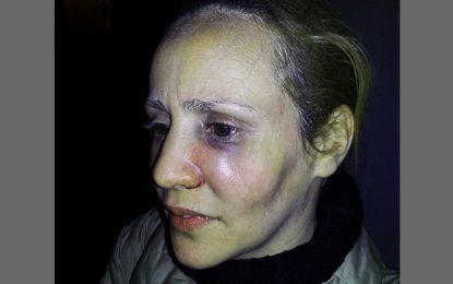 Tunis : Dorra porte plainte pour agression policière