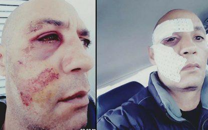 Tunis : Un policier agressé par des proches de délinquants