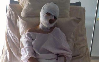 Djerba: Procès contre la propriétaire du pitbull ayant mordu un enfant
