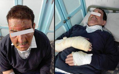Gafsa : Un policier à la retraite brûlé par un inconnu