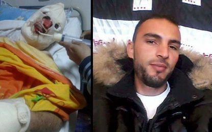 Monastir : Ramzi, agressé et brûlé par 8 voyous