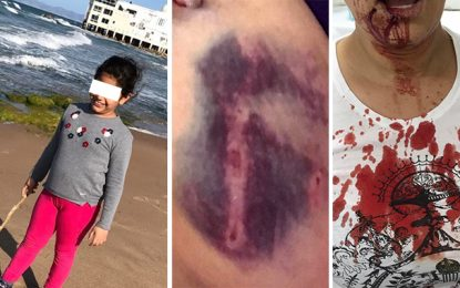 La Marsa : Un rottweiler attaque une enfant sur la plage