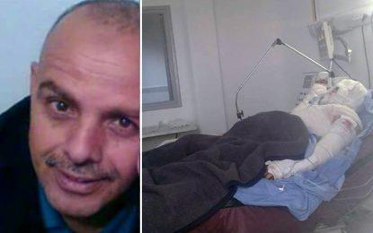 Les policiers en colère: Brûlé vif, l'agent Hajlaoui dans un état critique