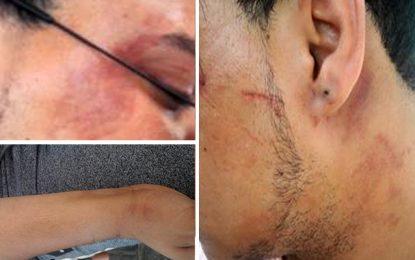 Sousse : Deux homos portent plainte pour agression policière