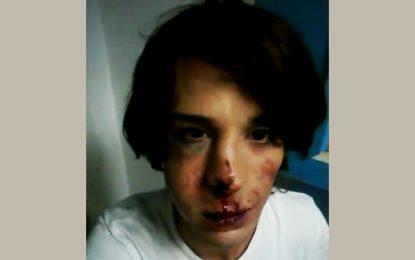Un travesti tabassé dans un poste de police à Tunis
