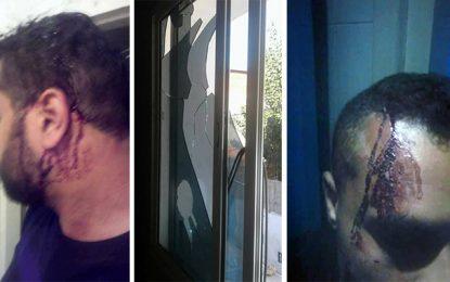 Douar Hicher : Un policier attaqué chez lui par des inconnus