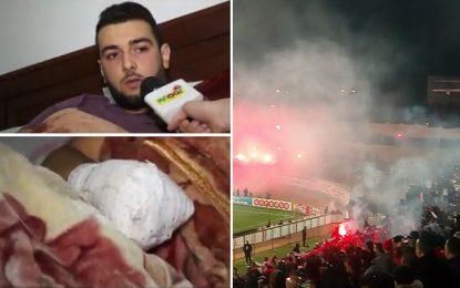 Sousse : Un supporter perd ses doigts dans un craquage de flamme