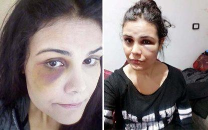 Tunis : Une étudiante violemment agressée à l'avenue Mohamed V