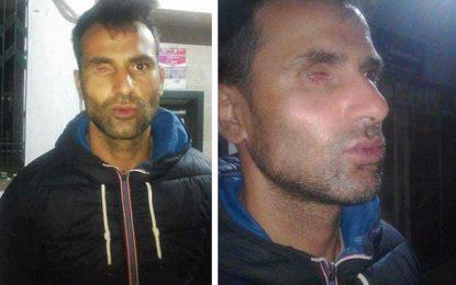 Terrorisme : Un policier blessé se dit abandonné par l'Etat