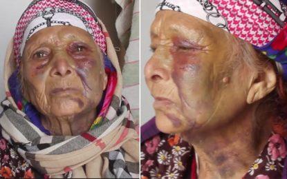 Zaghouan : Une femme de 82 ans violemment battue par un inconnu