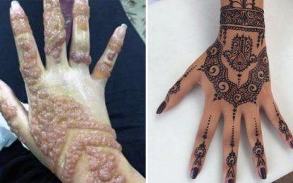 Tunisie : Alerte sur du «henné noir» importé de Libye