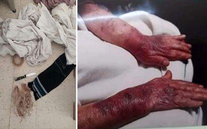 Ksar Hellal : Il torture une dame âgée pour la cambrioler