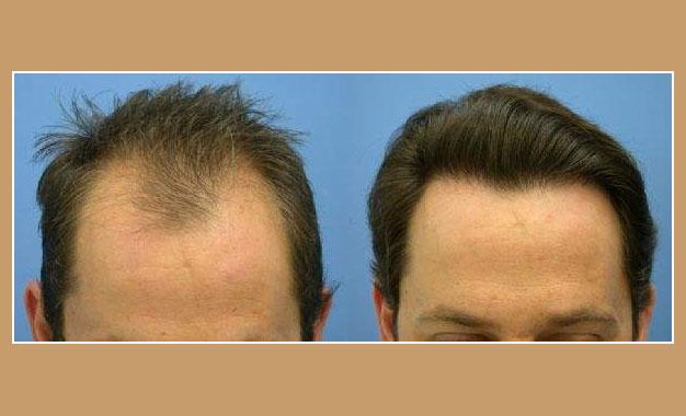 transplantation cheveux turquie