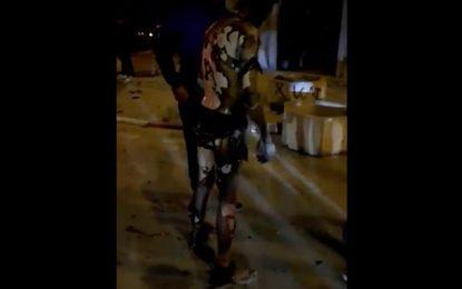 Korba : Hassan aurait été brûlé par son ami au poste de police