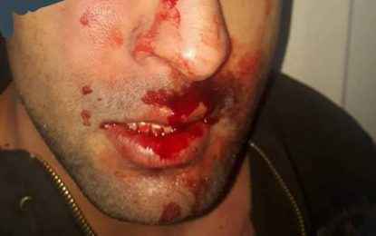 Agression d'un résident à l'hôpital de Ben Arous : Les médecins en colère