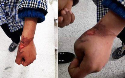 Tunis : Un enfant accuse son père de l'avoir brûlé avec un couteau chauffé (vidéo)