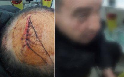 Contrebande : Des agents agressés lors de saisies dans des entrepôts à Tunis