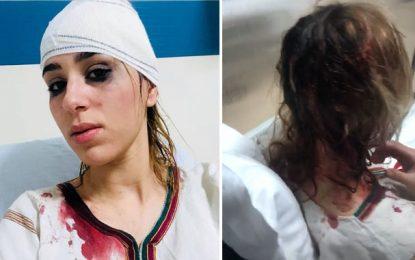 Douze points de suture à la tête pour Nermine Sfar à cause d'une caméra cachée!