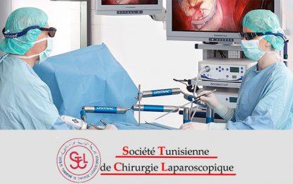 Tunisie: Le 17e Congrès national de chirurgie laparoscopique en juin 2019