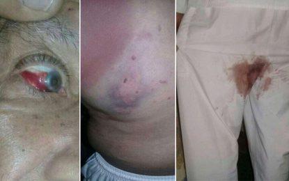 Sidi Hassine : un homme de 81 ans agressé par deux femmes et blessé aux parties génitales