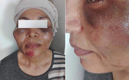 Aide ménagère battue par son employeur : L'avocate de la victime tire la sonnette d'alarme
